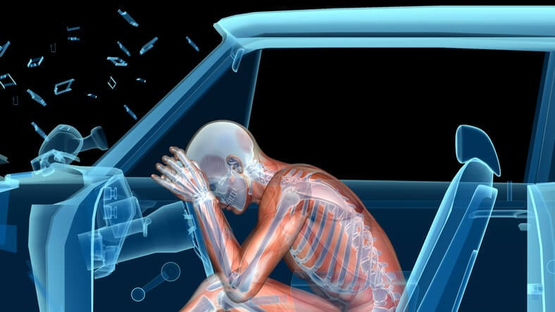 Auto Accident Injury Treatment Using Chiropractic Care