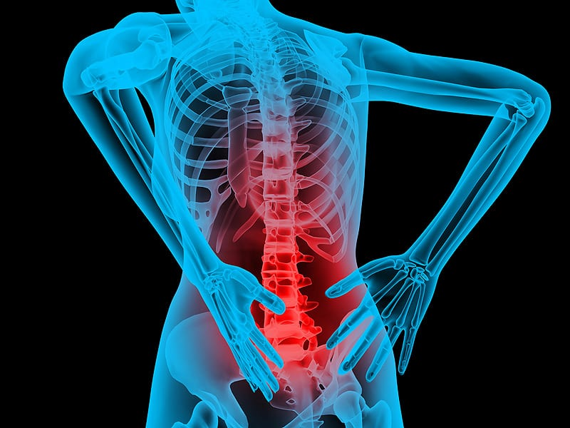 Causes of Lower Back Pain After a Car Accident